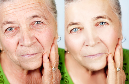 ניתוח מתיחת פנים- להחזיר את השנים אחורה